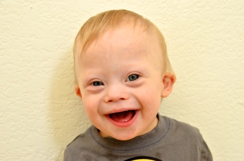 baby-down-syndrome-face-boy-smiling-9